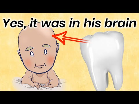 How a Tooth Was Found Inside a Boy's Brain