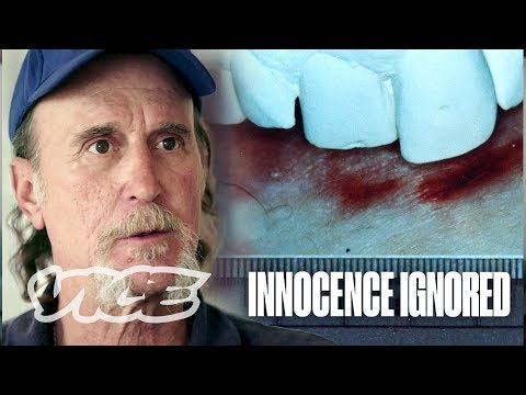 Forensic Science Put Me on Death Row for My Teeth | Innocence Ignored