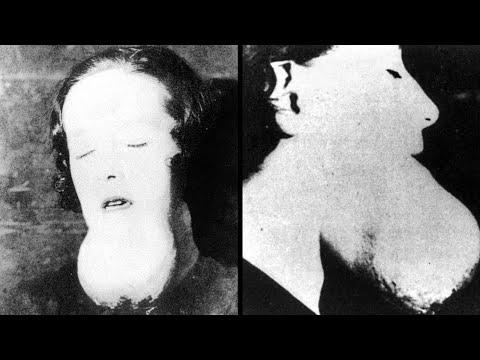 The Terrifying Story Of The Radium Girls