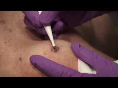 Watch & Learn: Electrosurgery