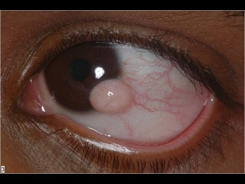 Limbal Dermoid excision