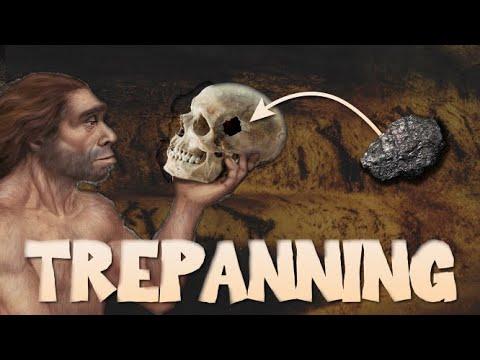 The History of Trepanning