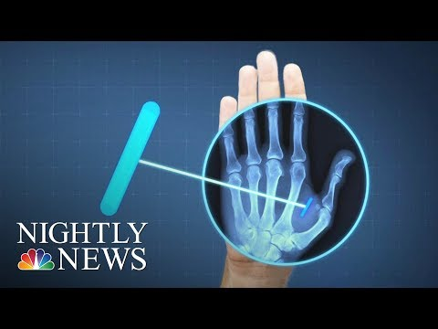 ID, Wallet, Keys All In Your Hand: Sweden Moves Into The Future With Microchipping | Nightly News