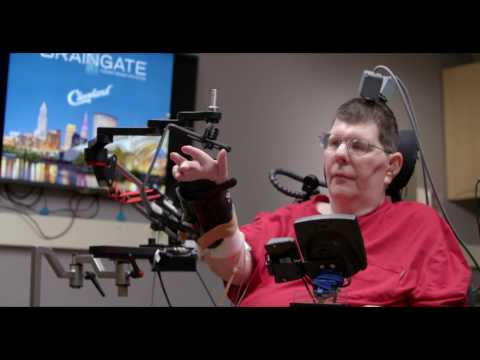Man with quadriplegia employs injury bridging technologies to move again - just by thinking