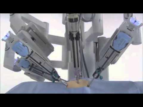 da Vinci® Surgery - How It Works