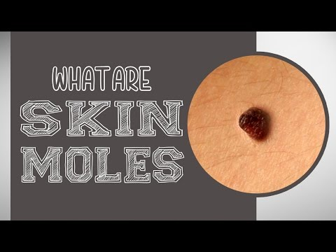 What are Skin Moles?