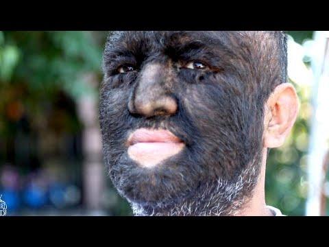 Meet the World's Hairiest Man