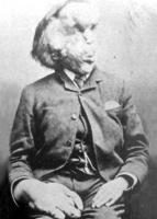 Joseph Carey Merrick