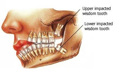 Wisdom Teeth 01 En