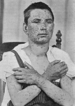 Smallpox Il6Lg