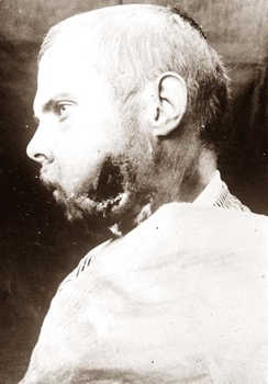 Wounded-World-War-I-001