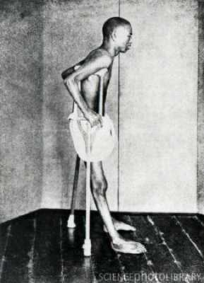N5040001-Beriberi Patient, 1914-Spl