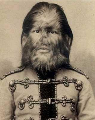 Russiandogfacedboy1