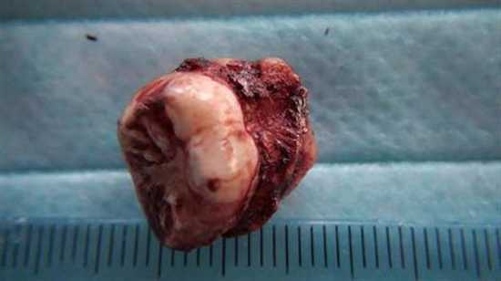 Tooth Removed From Nose-Tury