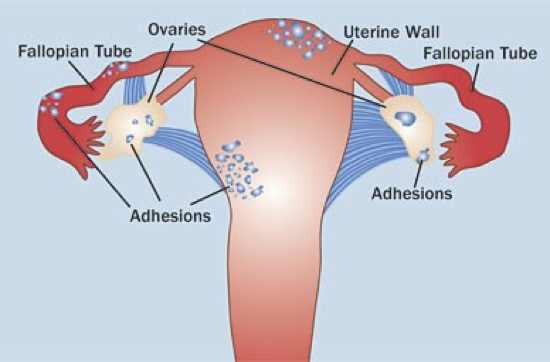 Endometriosis-Fig-2Col