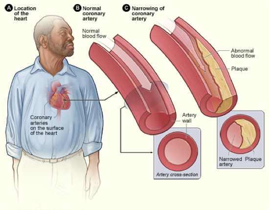 Atherosclerosis 2011