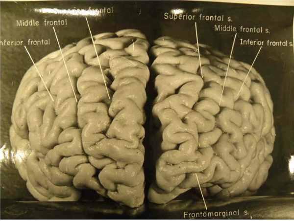 Fig05-Whole-Brain Custom-60Fc79F3Efbefb7Afd04350544B2Bb9C058Ef44B-S6-C10