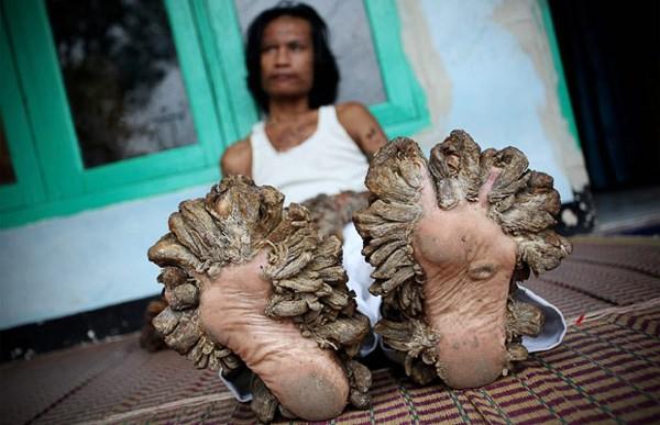 Feet 1543841I