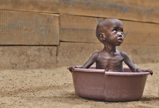 03e-east-africa-famine