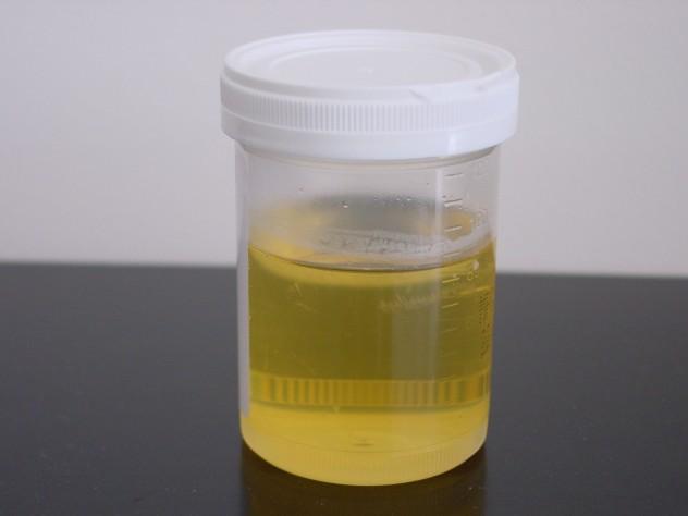 Urine