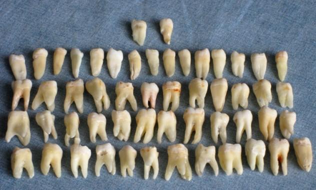 human_teeth