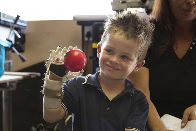 prosthetics