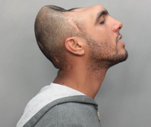Man With Half a Head arrested