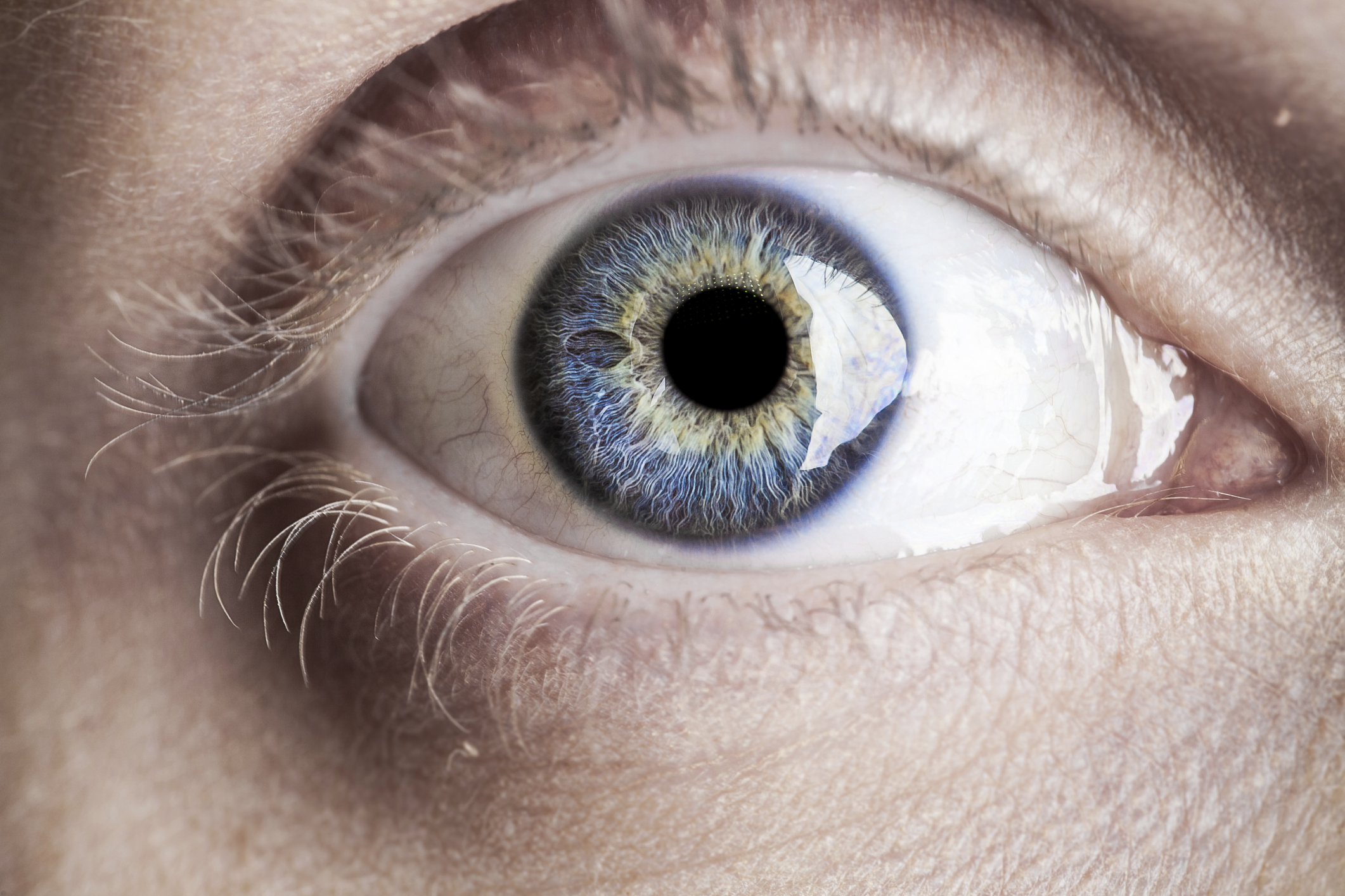 In Every Case Of Eye Paralysis The Loses All Sensory And Motor Functions Its A Much More Common Condition Than Youd Think
