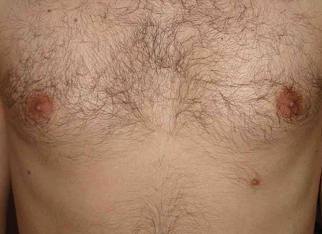 800px-Supernumerary_third_nipple