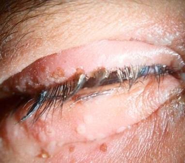 Herpes_simplex_blepharitis