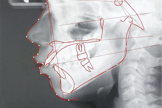 4- craniology