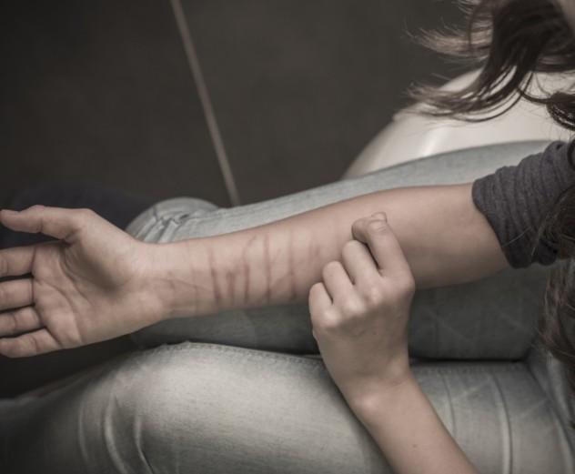 9 Self harm