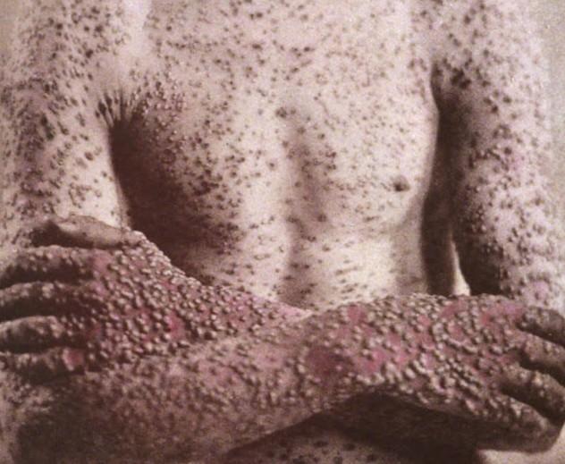 2 smallpox