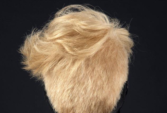 2-scalp-509135643