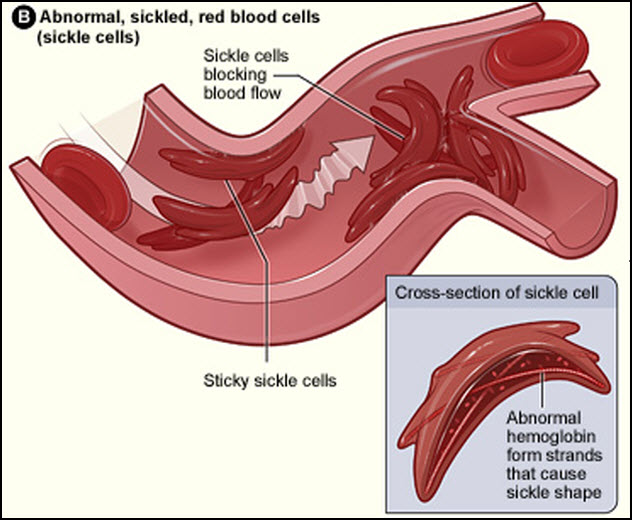 2-sickle-cell