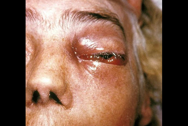 9-mucormycosis