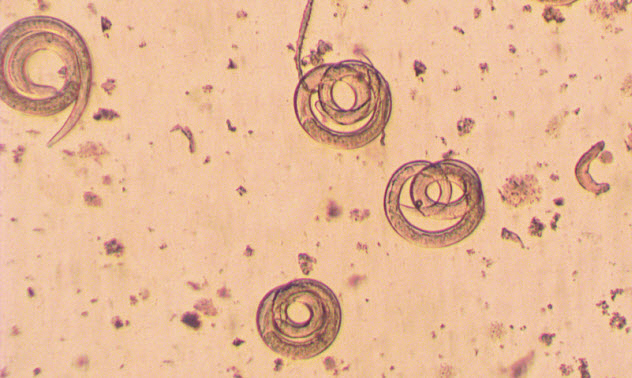 9-tapeworms_000037381758_Small