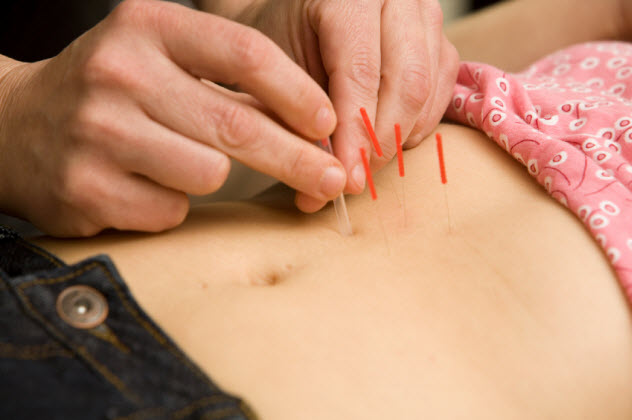 9-acupuncture_000008893520_Small