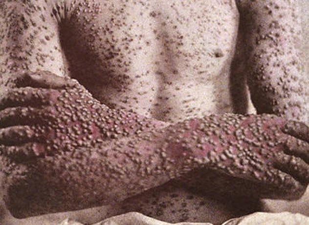 4-smallpox