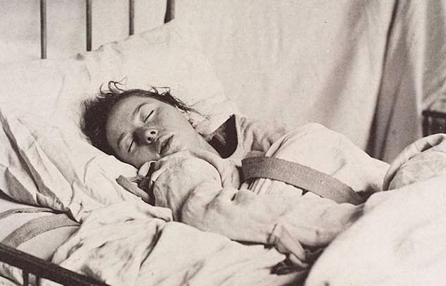4b-epileptic-patient-asylum