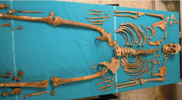 Gaspare Pacchierotti Skeleton