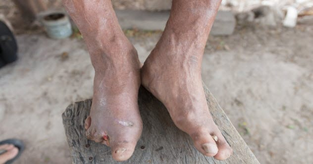 3b-leprosy_91878749_small