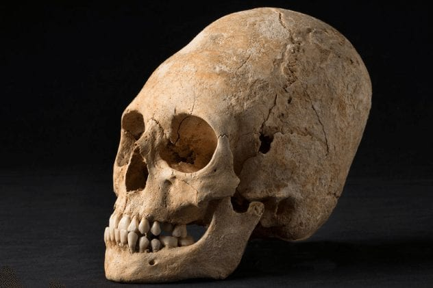 alsatian-noblewoman-skull