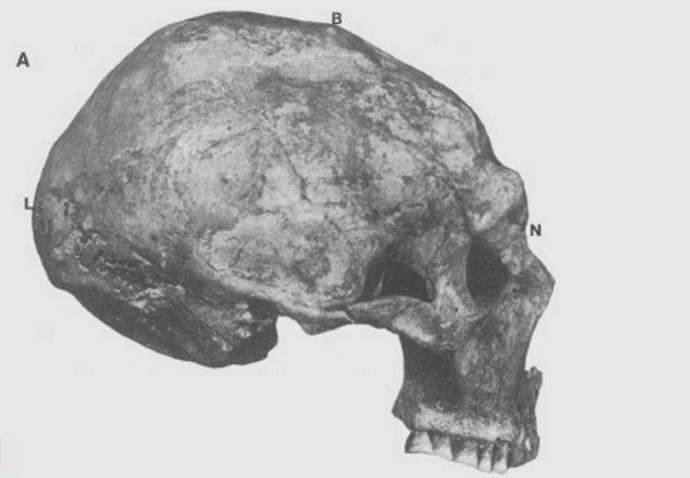 shanidar-skull
