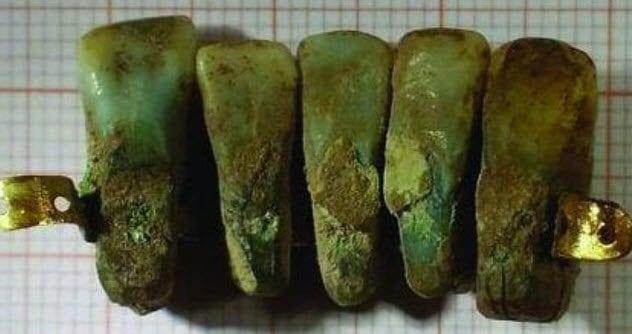 4-recycled-teeth