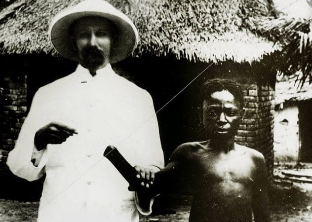 8a-congolese-with-severed-hand