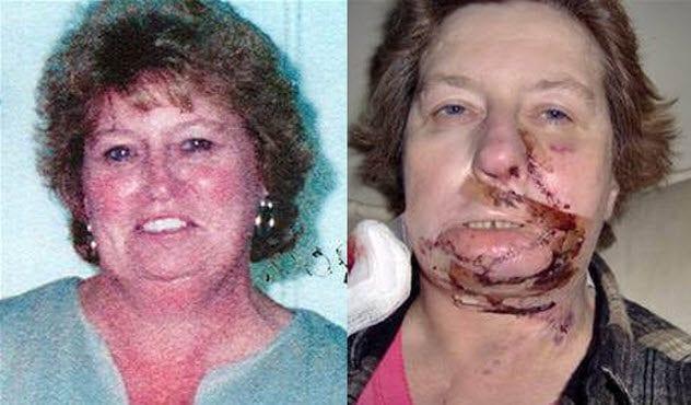3-rita-talbert-before-and-after-surgery