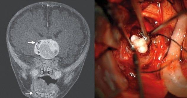 9-teeth-in-brain-tumor