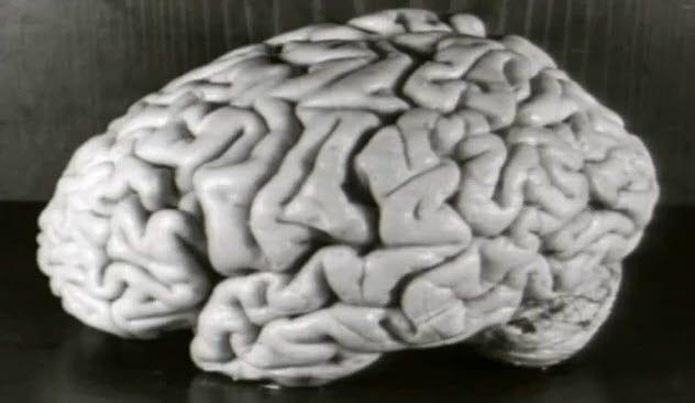 1-einstein-brain