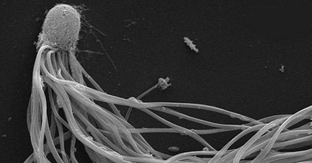 Catagylphis sperm